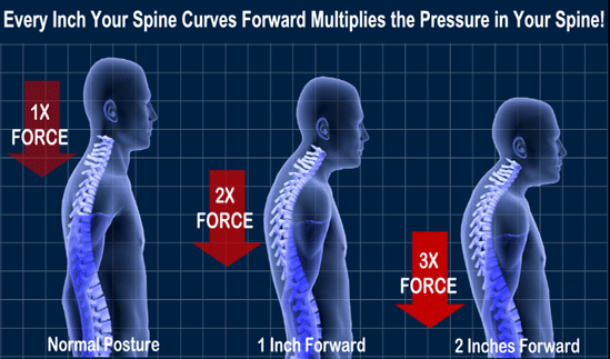 Slouching, widows hump, AGS or Poor Posture?