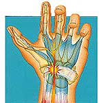 Carpal Tunnel Syndrome What is it?