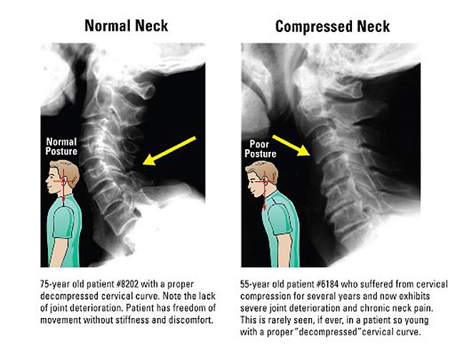 Neck X-rays of Before and After Result with Posture Pump