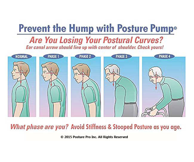 Do you have widows hump, AGS or Poor Posture?