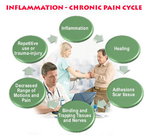 Breaking Cycle of Inflammation and Chronic Pain