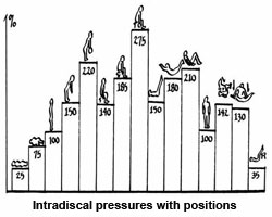 Intradiscal Pressures in Various Body Positions