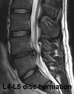 Lumbar Traction for Disc Herniation